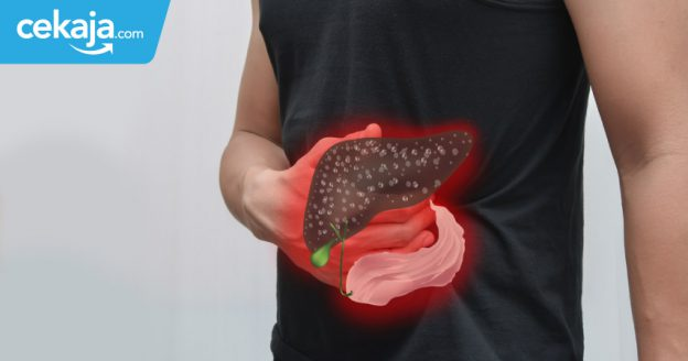 tips cegah penyakit liver - CekAja.com